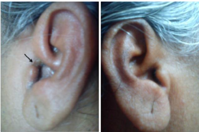 localized-otitis-externa-left-ear