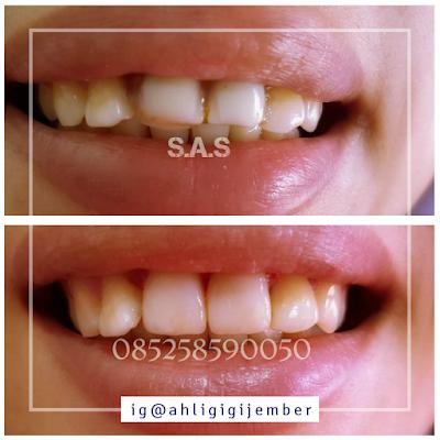 Foto hasil perbaikan gigi depan keropos hitam dan berlubang