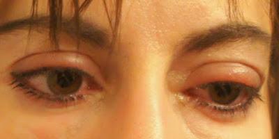 Kesehatan - Racikan Alami untuk Mengatasi Mata Bengkak