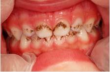 pigmentacion-diente-niños-bacterias
