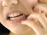 Inilah Cara Mengobati Sakit Gigi Secara Alami Terbukti Ampuh, Yang Lagi Sakit Gigi Wajib Baca!