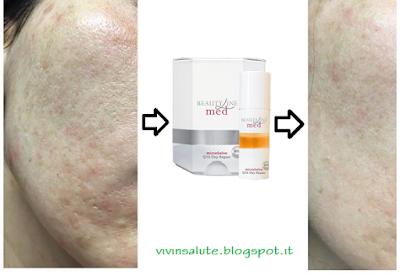 Med Oxy Repair Intensive per eliminare le macchie della pelle