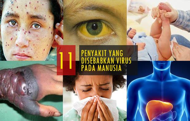 Beragam jenis mikroorganisme seperti jamur 11 Penyakit yang Disebabkan oleh Virus pada Manusia dan Penjelasannya