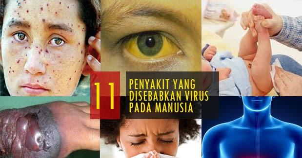 470+ Gambar Virus Pada Manusia Hewan Dan Tumbuhan Terbaru