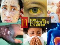 12 Penyakit yang Disebabkan oleh Virus pada Manusia dan Penjelasannya