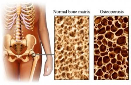 15 Hal yang Dapat Meningkatkan Resiko OSTEOPOROSIS