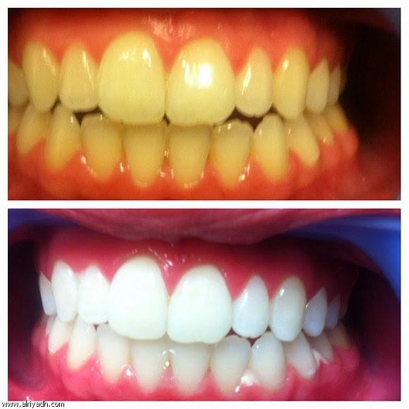 وصفة طبيعية سهلة ومبتكرة لتبييض الاسنان فى 60 ثانية
