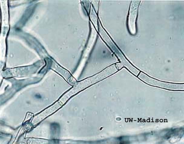 One Celled Organism >> Alex.Alveo18: Vocabulary # 5 -Protist and Fungi