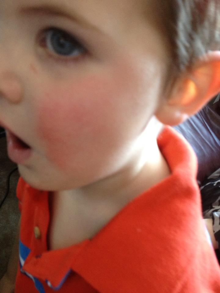 Tales of Mommyhood: Fifth's Disease
