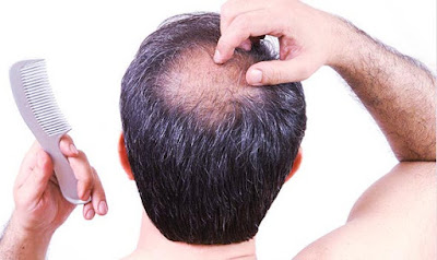 alternative treatments for hair growth