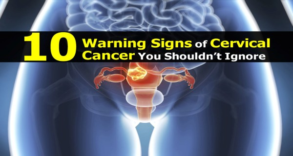 Signs cervical 10 cancer of Don't ignore