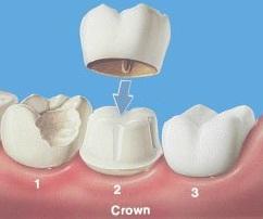 Mengulas Lengkap Bagaimana Cara Merawat Gigi Palsu Lepasan Mupun
