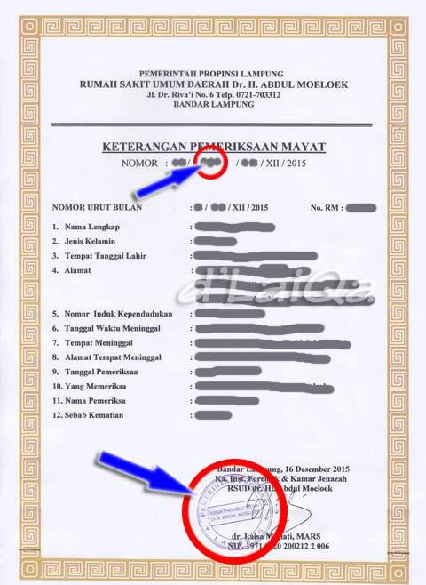 D Laiqa Arena Mengurus Surat Keterangan Kematian Visum Di Rsud Dr H Abdul Moeloek Lampung