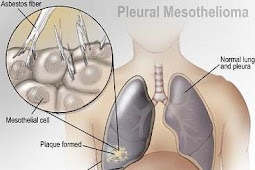 Asbestos Mesothelioma Proceedings - A  Quantity Of Essential Information Roughly The Method You  Ought To Understand