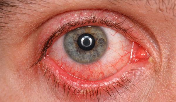 وصفة طبيعية لعلاج التهاب قرنية العين وتقرحها
