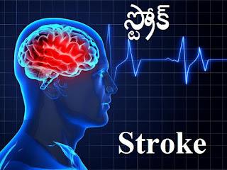 పక్షవాతం, హార్ట్ ఎటాక్ రాకుండా ఉండాలంటే - Prevent from stroke , paralysis , heart attack and Heart Related Problems