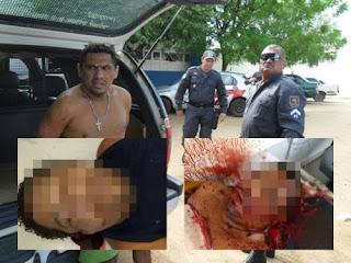 Paraibano acusado de explosão a banco é executado dentro de ambulância do SAMU no PE