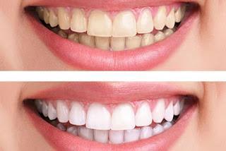 وصفة رهيبة لتبيض الاسنان في يوم واحد