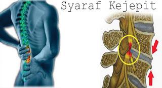 Cara Mengobati Syaraf Kejepit dengan Obat Tradisional