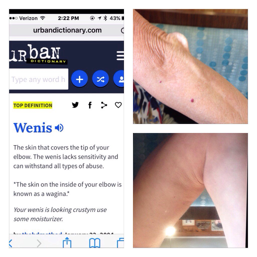 How To Wenis Elbow