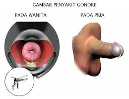 Image of Pencegahan penyakit kencing sakit dengan resep dokter