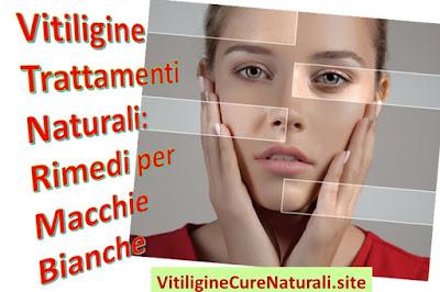 vitiligine-trattamenti-naturali-rimedi-eliminare-macchie-bianche