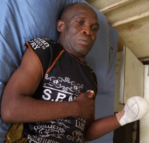 man lost hand fulani attacks
