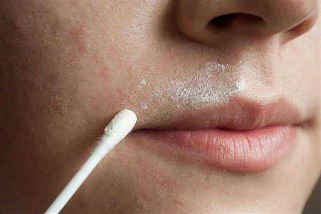 This Natural Recipe Will Make Your Upper Lip Hair Disappear Forever