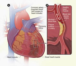 Kerusakan otot dan arteri yang terblokir Penyakit Jantung Koroner