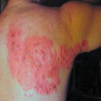 herpes-saiba-mais-sobre-esta-doenca