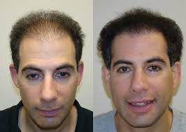 saç ekimi öncesi ve sonrası foto 36