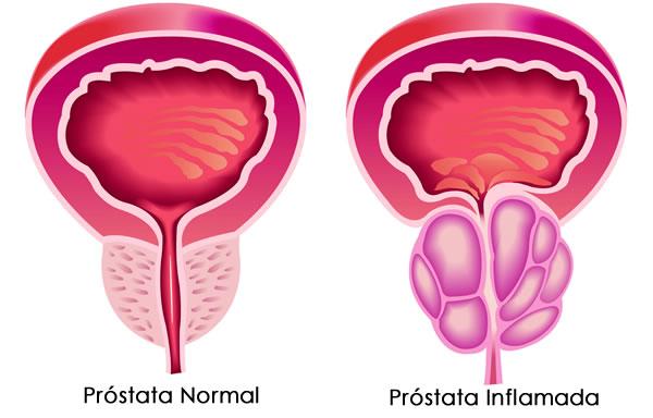 estado de la prostata