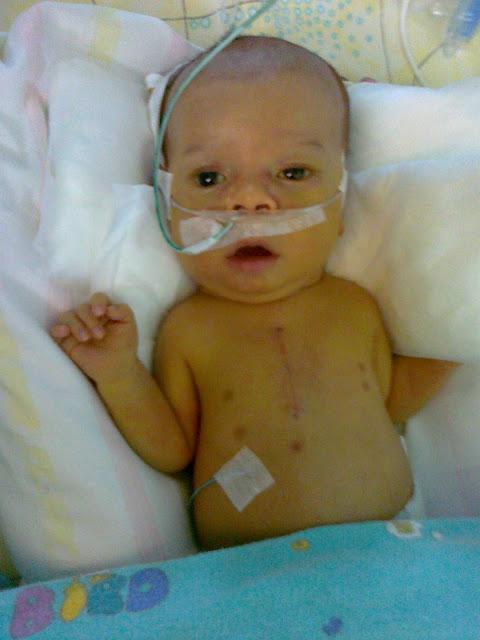 szpital wada serca wady wrodzone szpital prokocim