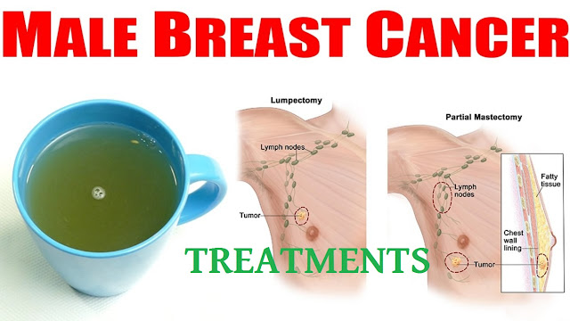Most Effective Male Breast Cancer Treatments