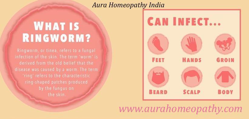 Homeopathy Best For Ringworm I Daad I Mycosis I Tinea Cruris