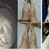 How To Whiten Dark Knees And Legs Fast And Easy Without Spending Money