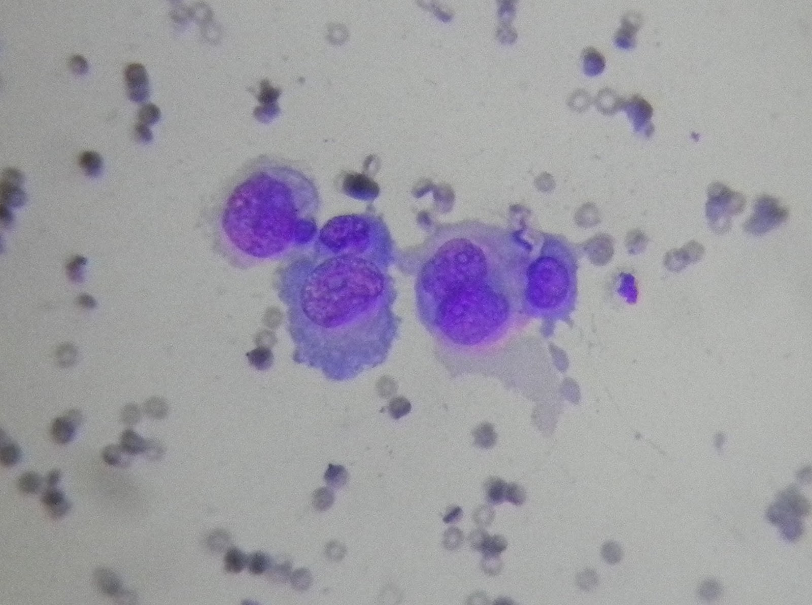 Lung cytology