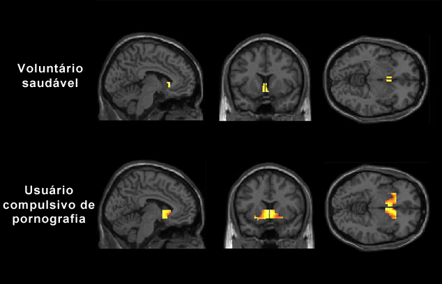 Diário do New Man11 - Página 2 Cerebro%2Blibido%2Be%2Bpornografia