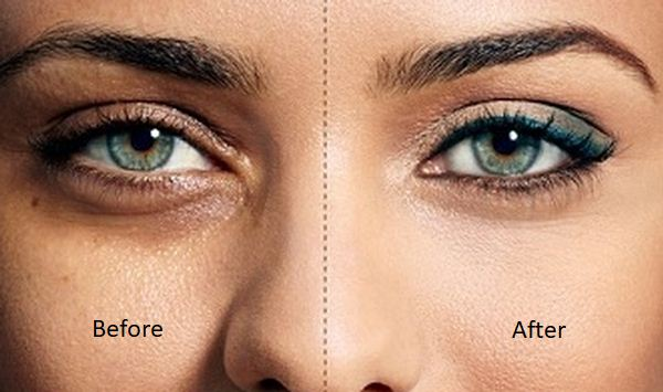 Natural Tips On How To Get rid Of Dark Circles