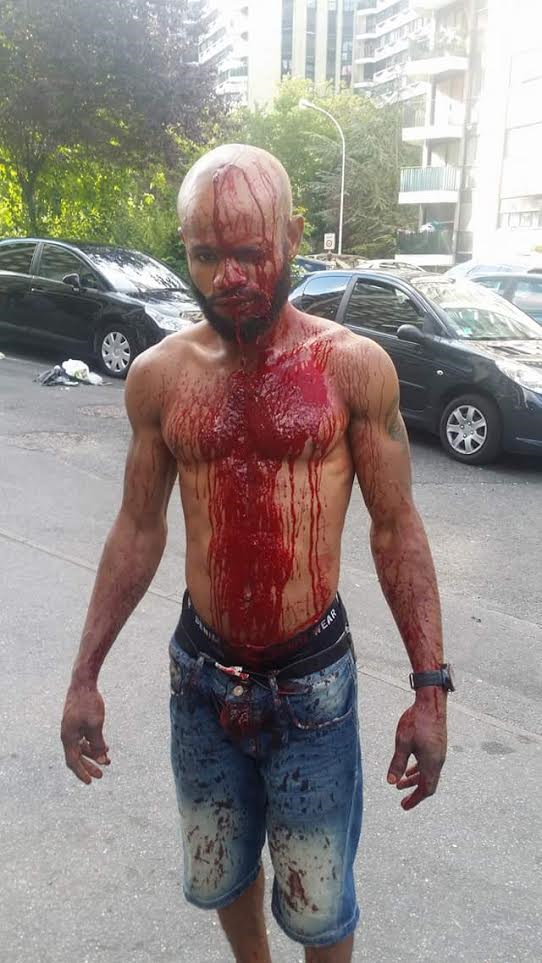 (Picture) Nigerian man named Ino Into,cries for help over threat to his life following a brutal attack by a drunken couple in France