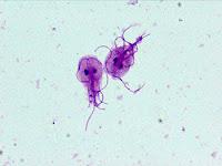 Vista a traves del microscopio de Giardia lambria, con tinción de giemsa