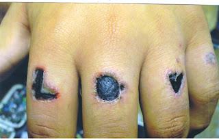 Diario De Un Tatuador Infección De Tatuajes