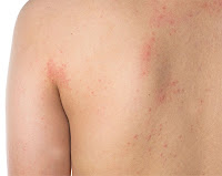 ways to treat eczema at home