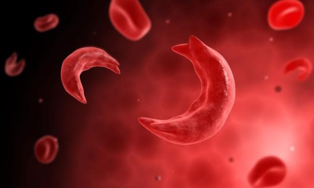 Θεραπεύτηκε για πρώτη φορά στην ιστορία η δρεπανοκυτταρική αναιμία!