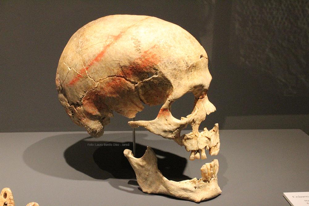Cráneo con bandas de pigmento de cinabrio procedente de la necrópolis de Humanejos (Parla, Madrid).