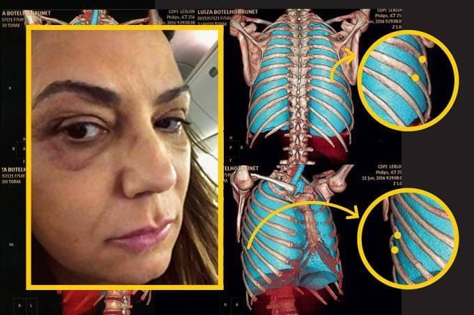 Luiza Brunet e laudo que mostra costelas quebradas