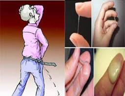 Penis sakit Keluar nanah bercampur darah