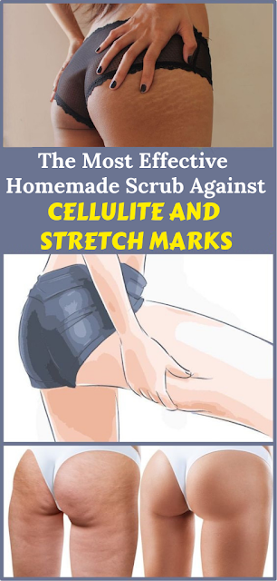 The Most Effective Homemade Scrub Against Cellulite And Stretch Marks