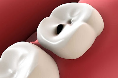 sau khi bọc răng sứ bị đau nhức là do đâu -3