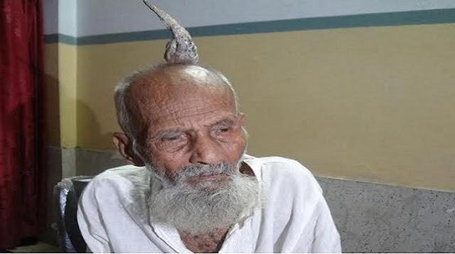 ১১০ বছর বয়সী বৃদ্ধের মাথায় শিং